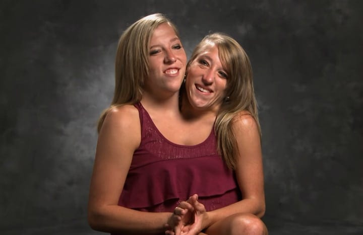 Abby and Brittnay Hansel - Conjoined twins.Nothing stops